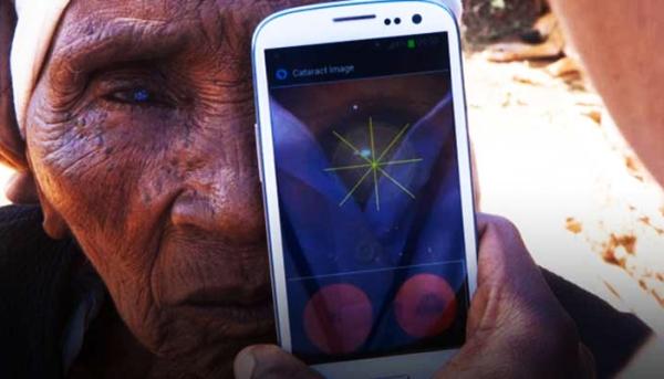 App Peek examina saúde ocular de pacientes em locais isolados