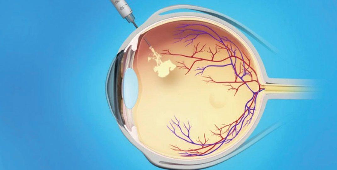 Injeção-intravítrea-img