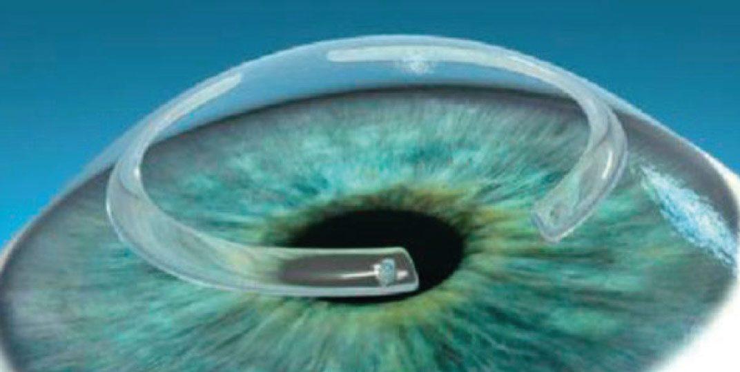 implante-de-anel-img